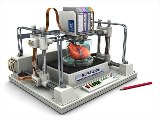 3d prosthesis printer